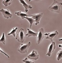 23123453_cancer cells small