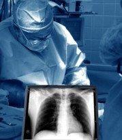 15145511_mesothelioma surgery