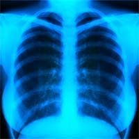 1520527_lungs2