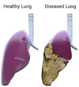 Pleural Mesothelioma Affects on Lungs