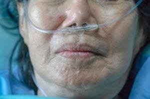 breath test for mesothelioma