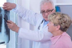 Certain factors lead to longer mesothelioma survival