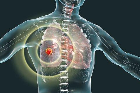 mesothelioma metastasis prevention