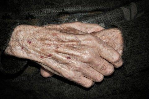 elderly mesothelioma patients