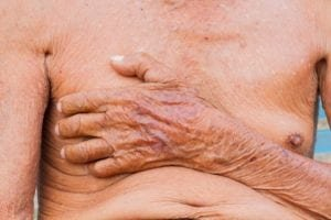 Skin Side Effects
