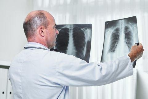 catheter tract metastasis